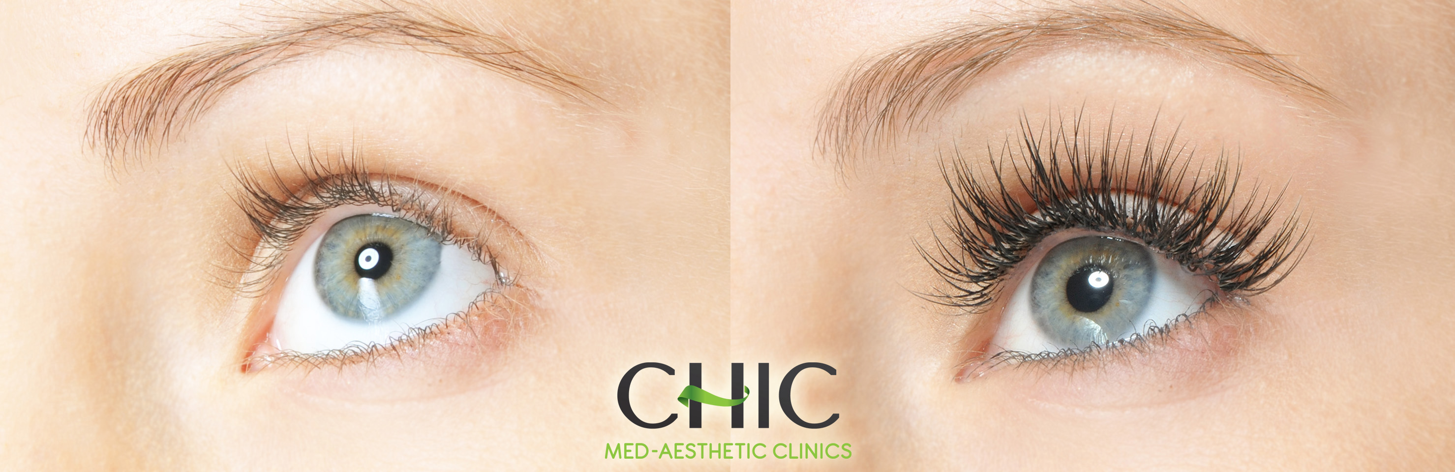 52e72a4e824 Semi-Permanent Eyelash Extensions - Chic Med-Aesthetic Clinics