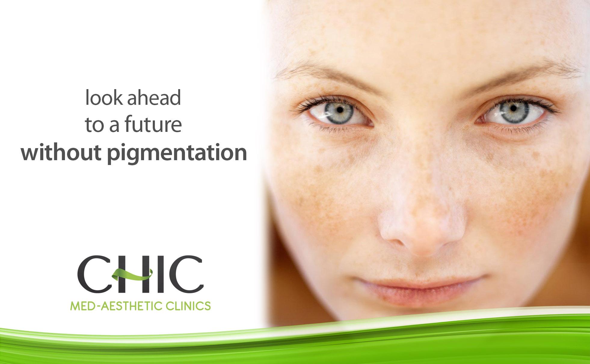 Skin Pigmentation - Chic Med-Aesthetic Clinics